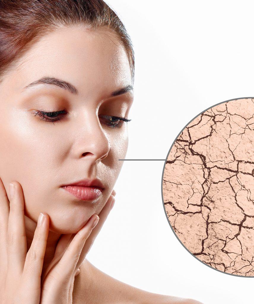Identify your skin type - dry